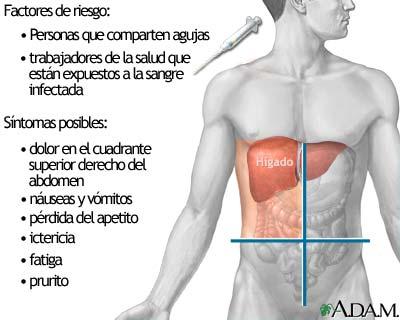 acid reflux symptoms liver disease