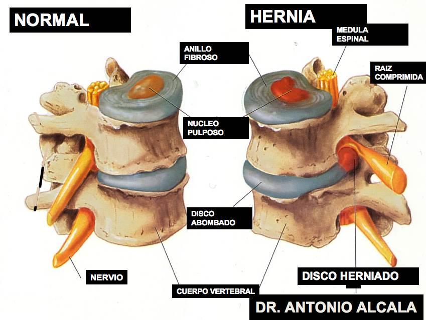 Síntomas de la hernia de disco | El Centinela