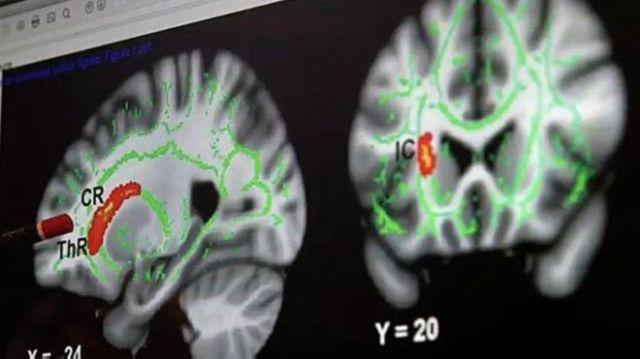 151124120758_brain_624x351_bbc_nocredit