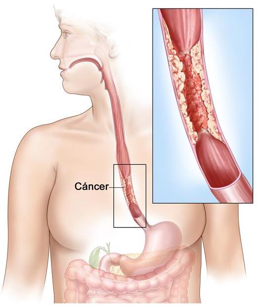 Señales y síntomas del cáncer de esófago